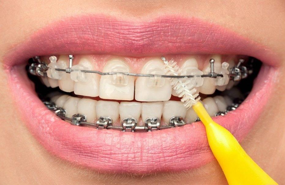 Что такое ирригатор полости рта, обзор типов ирригаторов и отзывы покупателей